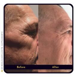 Minder diepe rimpels zijkant gezicht na collageen supplement van Skinuals