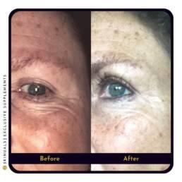 Strakkere huid ogen na collageen supplement van Skinuals