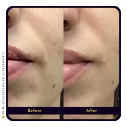 Strakkere huid mond na collageen supplement van Skinuals