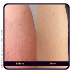 Strakkere huid armen na collageen supplement van Skinuals