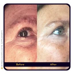 Strakkere huid rond ogen na collageen supplement van Skinuals